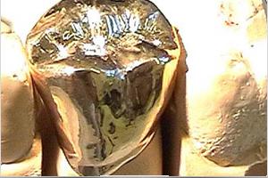 dentallabor-kronen-goettingen
