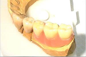 dentallabor-teilprothesen-goettingen