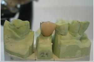 dentallabor-vollkeramik-goettingen